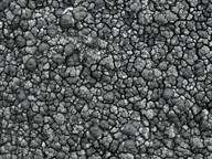 Miriquidica griseoatra